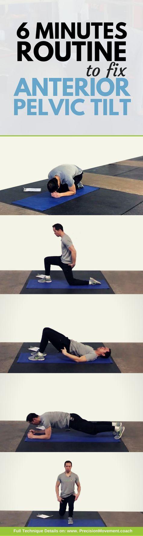 6 Minute Anterior Pelvic Tilt Exercise Program