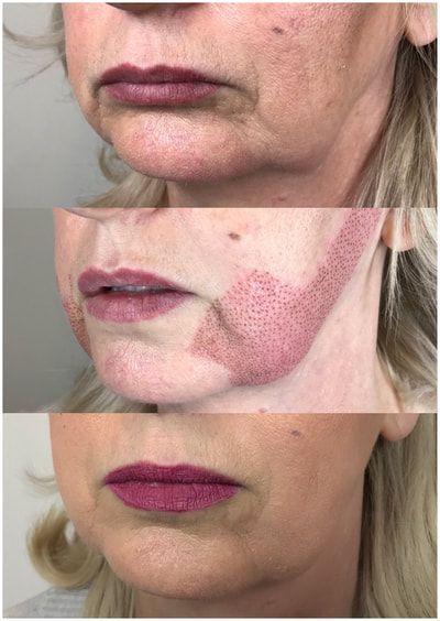 Plasma Skin Tightening | Fibroblast - Shay Danielle