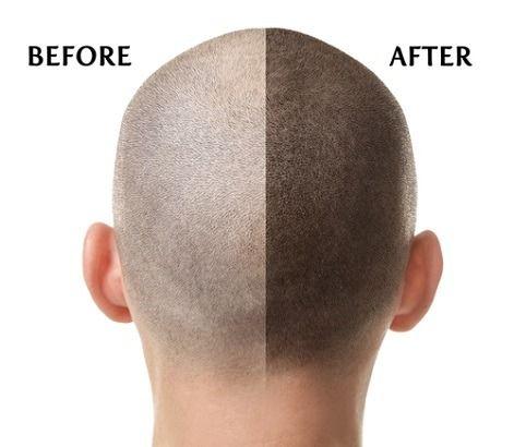 لا تقل العوامل النفسية في خطورتها وتأثيرها على الشعر عن العوامل البيئية والوراثية بل قد تفوقها فالتعرض لضغط Hair Transplant Problem Hair Loss Solve Hair Loss