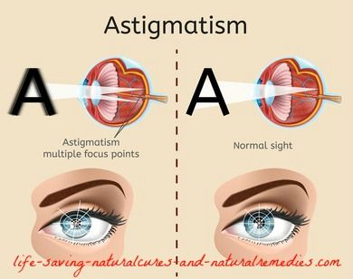 A Home Remedy For Astigmatism That Works Like A Charm Astigmatism Eye Exercises Home Remedies