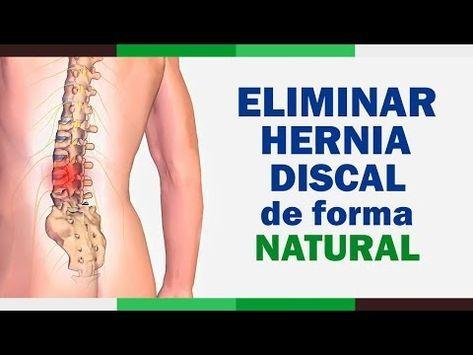 Tratamiento De Hernia Discal L4 Y L5 Derecha O Cuarta Y Quinta Vértebra Lumbar Youtube Hernia Discal Tratamiento Para Hernia Discal Hernias De Disco