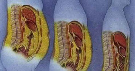 Un moyen rapide et facile pour perdre la graisse du ventre est une chose dont toute femme rêve.