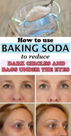 dark circle Check out how to use the miraculous baking soda to get rid of dark circles and bags under the eyes! See how to make natural remedies that contain baking soda and other ingredie Baking Soda Under Eyes, Baking Soda Dark Circles, Under Eye Mask, Dark Under Eye, Under Eye Wrinkles, Baking Soda And Lemon, Baking Soda Uses, Reduce Dark Circles, Dark Circles Under Eyes