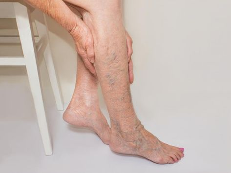 hand simptome varicose fotografie și tratament crin cu vene varicoase