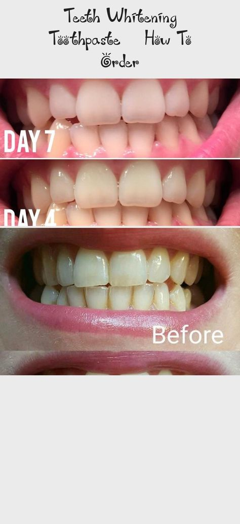 Teeth Whitening Toothpaste How To Order No Bleach Harsh