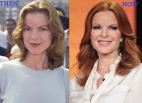Celebrity Marcia Cross Bad Plastic Surgery Gone Wrong celebrity .
