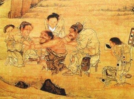 Acupuncture Ancient China Invention In 2020 Ancient Chinese Ancient China Ancient
