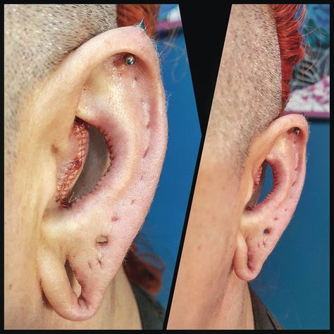 Ohh.Emm.Gee. What am I even looking at? #conchremoval #conchpiercing #bodymodifications #bodymodification #bodymods #bodyart #bodymod #bme…