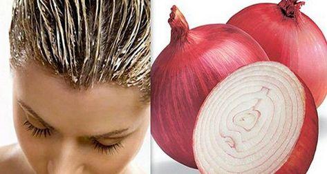 Cette recette réduit efficacement la perte des cheveux. Du jus d'oignon rouge pour une belle chevelure. Comment avoir des cheveux épais et sains ?