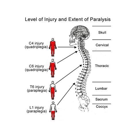 Quadriplegia Injury | Napolin Accident Injury Lawyer #medicalstudents Quadriplegia Injury | Napolin Accident Injury Lawyer