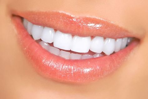 1 new message Need a Dental Clinic? We Offer Reliable, Comprehensive Dental Care Service for Everyone. Specialized Dental Care Experts Ready to Help You with Your Dental Issues. Teeth Whitening Remedies, Natural Teeth Whitening, Whitening Kit, Snap On Smile, Get Whiter Teeth, Beauty Hacks For Teens, Dental Veneers, Perfect Teeth, Dental Crowns
