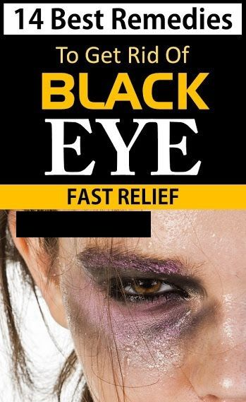 How To Get Rid Of Black Eye Naturally Eye Black Eye Care Health Eye Care