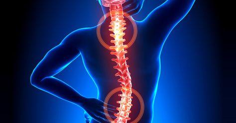 Картинки по запросу doenças da medula espinhal