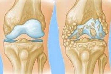 عکس نوشته در مورد خواهر با جملات بسیار زیبا و احساسی Knee Arthritis Rheumatoid Arthritis Symptoms Rheumatoid Arthritis