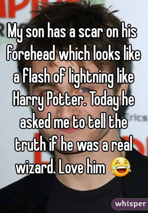 """""""My son has a scar on his forehead which looks like a flash of lightning like Harry Potter. Today he asked me to tell the truth if he was a real wizard. Love him  """""""