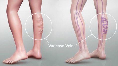 venas varicosas piernas causandas