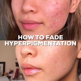 87b9c2fb8f49f099c30e471993306d58 - How To Get Rid Of Post Inflammatory Hyperpigmentation Naturally