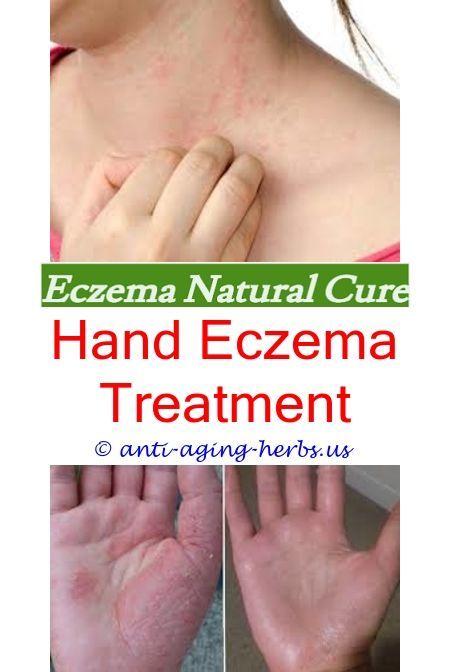 Emollient For Eczema Medicated Shampoo For Eczema Eczema Blisters On Fingers Dry Skin Eczema Can Eczema B Eczema Cure Eczema Causes Eczema Remedies