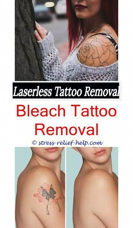 Where Can I Remove My Tattoo How To Remove A Tattoo At Home Without Scarring How Does Tattoo Removal Work Diy Tattoo Permanent Diy Tattoo Tattoo Removal Cream
