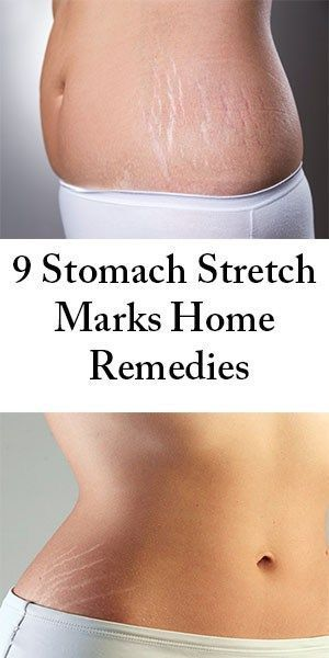 88020a215b7e38cc157dbe7e0dfa5ab9 - How To Get Rid Of Thick Hair On Stomach