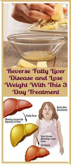 Best weight loss muscle gain diet picture 8