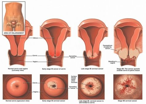 What You Don't Know About Vulvar Cancer May Kill You