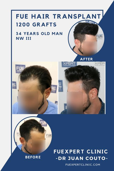 Zenith Hair Transplant Indore is trusted Hair Transplant Center in Indore  at affordable cost. We have one of the finest FUE Hair Transplant & FUT d…