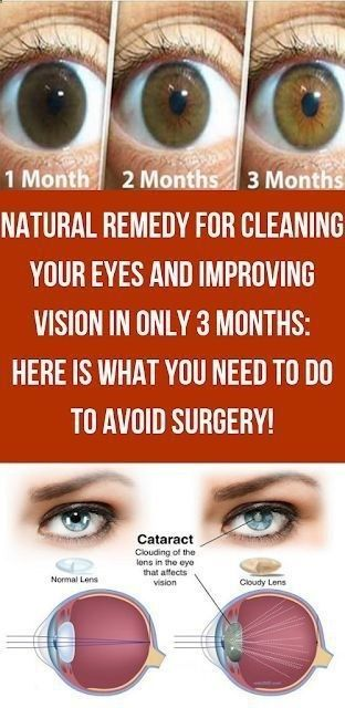 Natural Remedy For Cleaning Your Eyes And Improving Vision Natural Remedies Eye Health Remedies