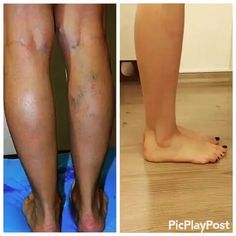 spider veins all over body
