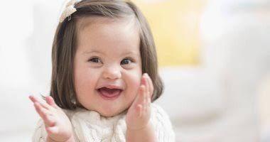 أسباب الإصابة بمتلازمه الداون والأنواع اسباب حدوث متلازمة داون ان السبب الحقيقي وراء حدوث متلازمة داون غير معروف ولكن Kids Health Down Syndrome Baby Face