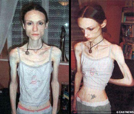Anorexia nervosa brazil