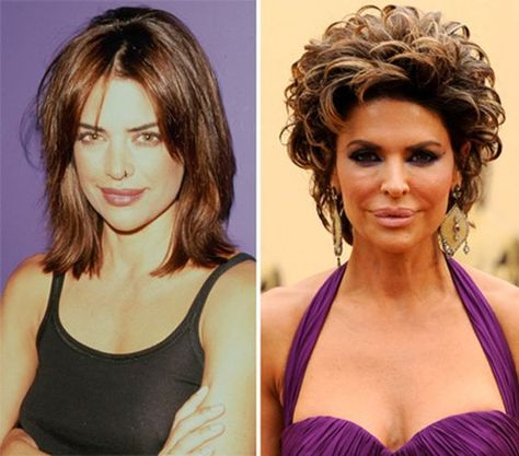 Lisa Rinna Plastic Surgery - she is associate degree American TV host, actress and business woman