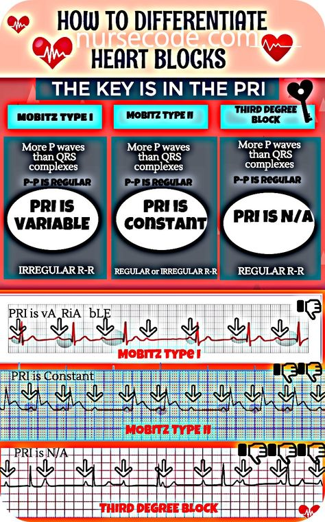 How to Differentiate Heart Blocks Inforgraphic - nursecode.com