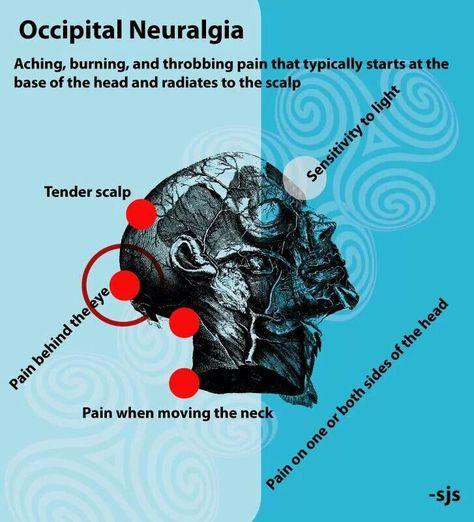 Occipital Neuralgia on Pinterest | Neck Pain, Spinal ...