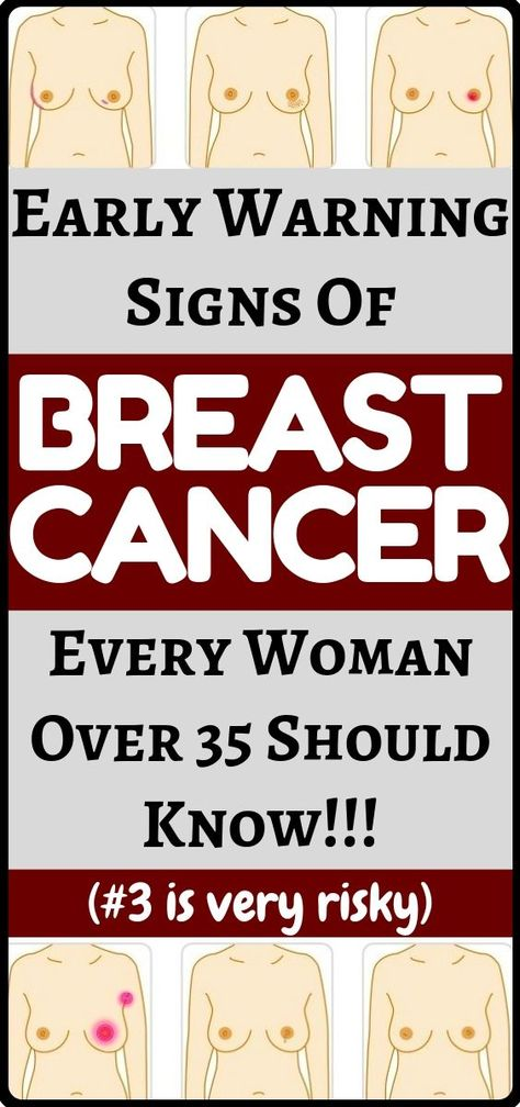 Early warning signs of breast cancer every woman should be aware of! - health and fitness + woman health care!