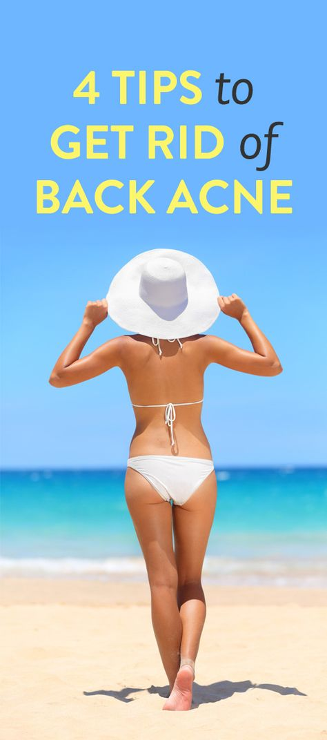 4 tips for treating back acne