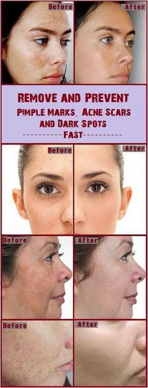 List of Pinterest vash face with water acne scars pictures