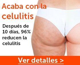 Ejercicios Para La Celulitis Que Sí Funcionan Mejor Que Correr En 2021 Ejercicios Para Celulitis Celulitis Eliminar Celulitis