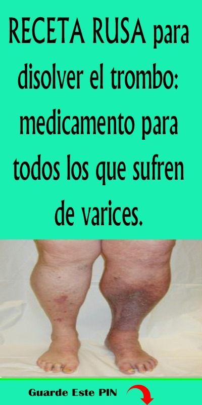 piernas entumecidas y diabetes