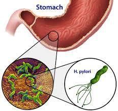 gyomorrák h pylori-ból a paraziták nem változtatnak rajtam