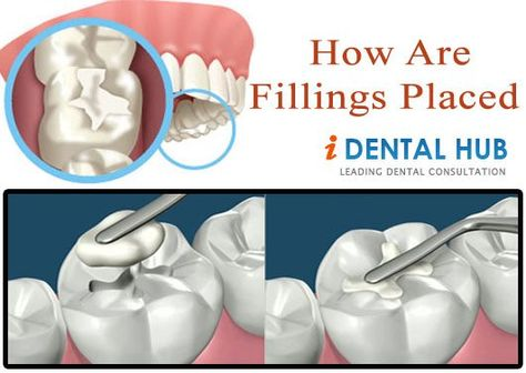 Dental fillings life is every patient concern as nobody wants to pay thru nose everytime the dental filling is lost. Composite Dental Resin filing can last long in case oral hygiene is good.