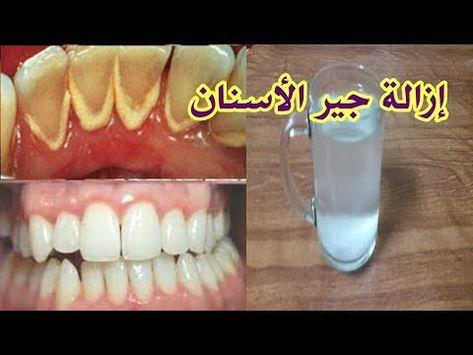 هل تعاني من جير الأسنان وإصفرار الأسنان إليك الحل للتخلص من الجير وألام الأسنان طبيعيا بدون طبيب Youtube Convenience Store Products Abs Convenience Store