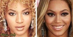 Cirugia Plastica Beyonce Antes Despues De La Nariz Beyonce Nose Job Beyonce Nose Nose Job