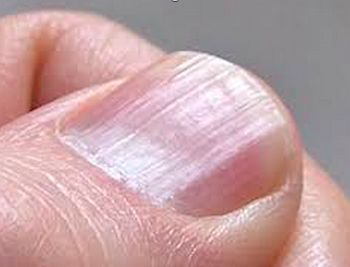 Best 25 Vertical Ridges On Fingernails Ideas Pinterest Nail Fingernail Health And
