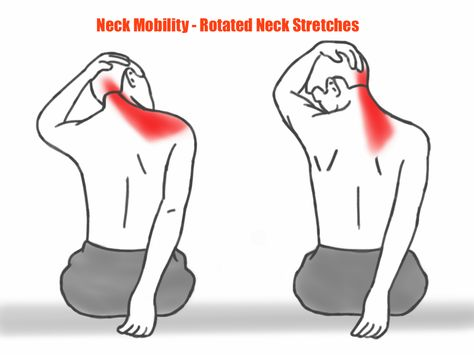 Forward Head alignment will prevent you from reaching your full potential. Neck And Shoulder Exercises, Posture Exercises, Neck And Shoulder Pain, Neck Stretches, Shoulder Workout, Shoulder Tension, Qi Gong, Fitness Workouts, Postural
