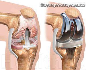 Артрит височно нижнечелюстного сустава как лечить