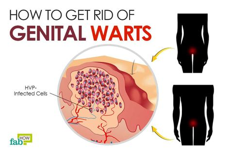 diagram of hpv wart wiring diagram detailed Anatomy of Wart diagram of hpv wart wiring diagram nl wart removal diagram of hpv wart