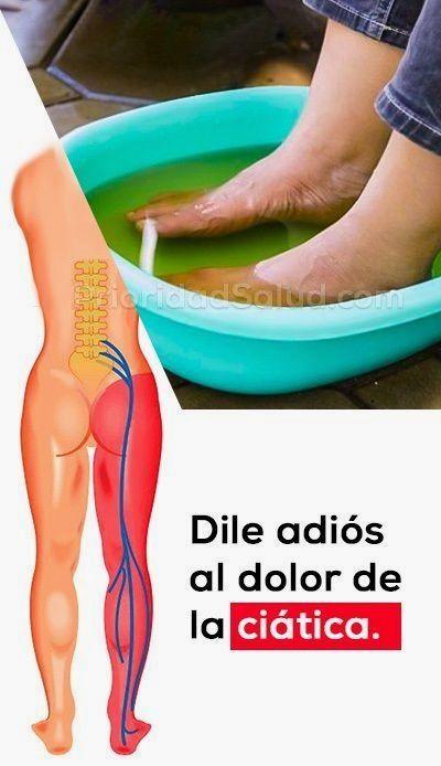 Dile Adios Al Dolor De La Ciatica Con Este Metodo Natural Infographic Health Health Health Info