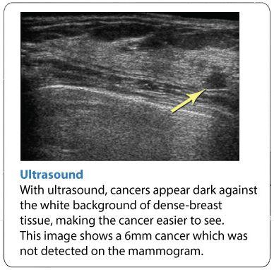 Pelvic Ultrasound034 #pregnancyfirstultrasound Early Pregnancy
