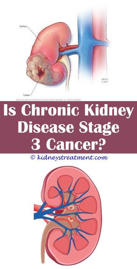 Pin On Kidney Disease Treatment